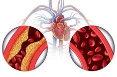 hipertenzija lupanje u ušima grade 2 hipertenzija droge